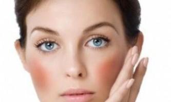 Як позбутися від купероза на обличчі